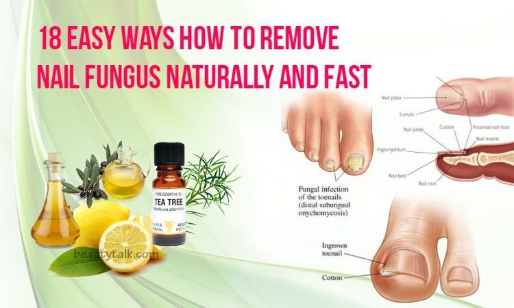 how-to-remove-nail-fungus