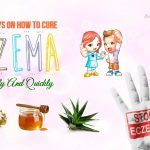 how-to-cure-eczema