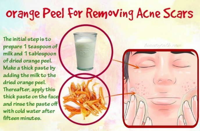 how-to-remove-acne-scars