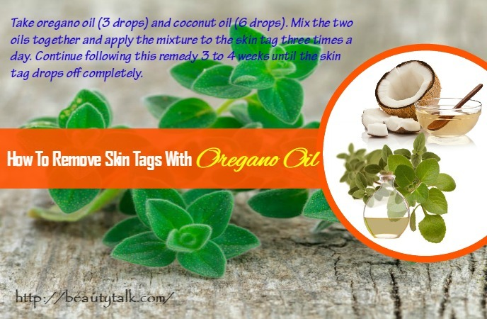 how-to-remove-skin-tags