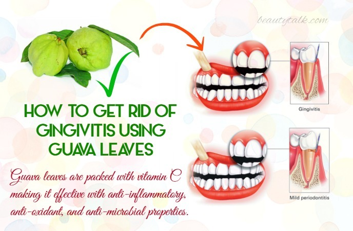 how to get rid of gingivitis - guava leaves