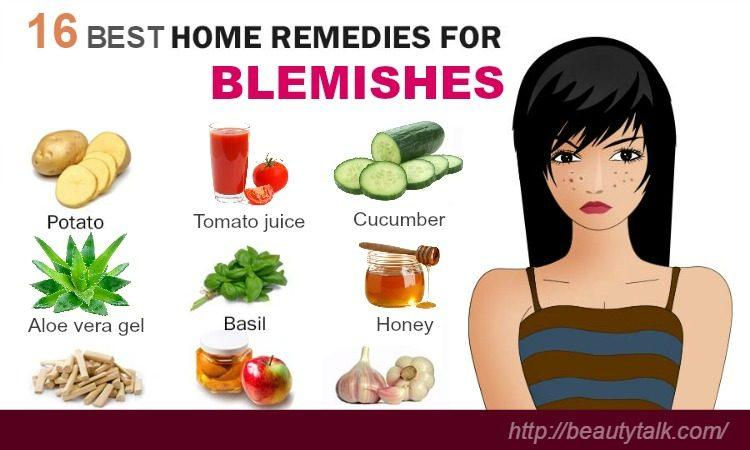 home remedies for blemishes