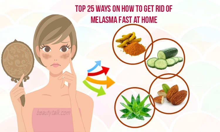 how-to-get-rid-of-melasma