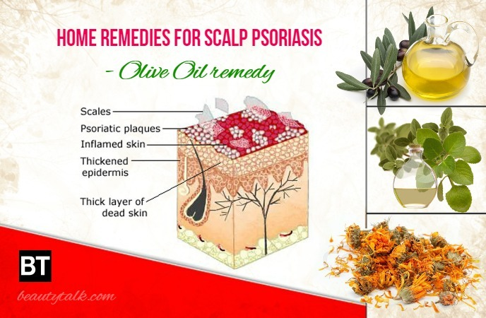 Home Remedies For Scalp Psoriasis