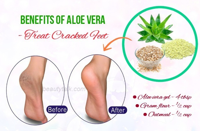 benefits of aloe vera