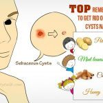 how to get rid of sebaceous cysts