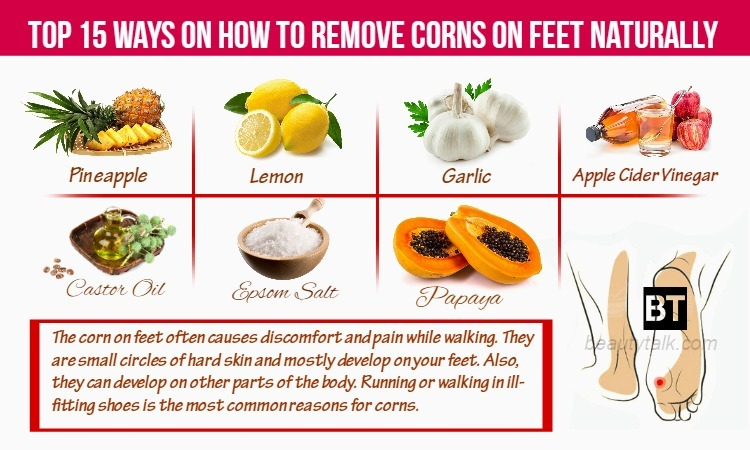 how to remove corns on feet