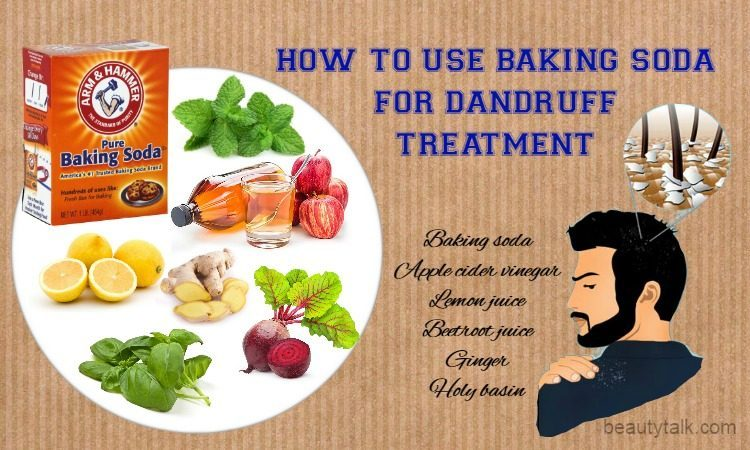 baking soda for dandruff