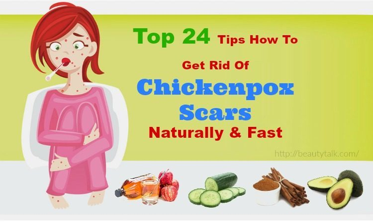How To Get Rid Of Chickenpox Scars