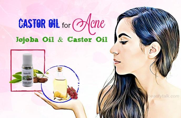 castor oil for acne