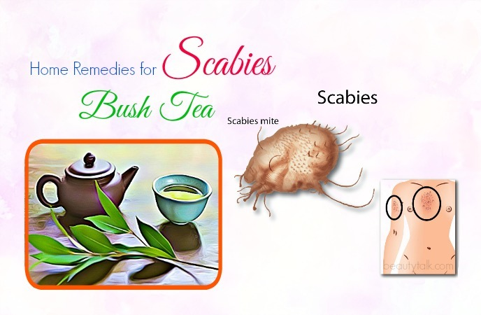 home remedies for scabies