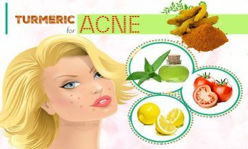 turmeric for acne