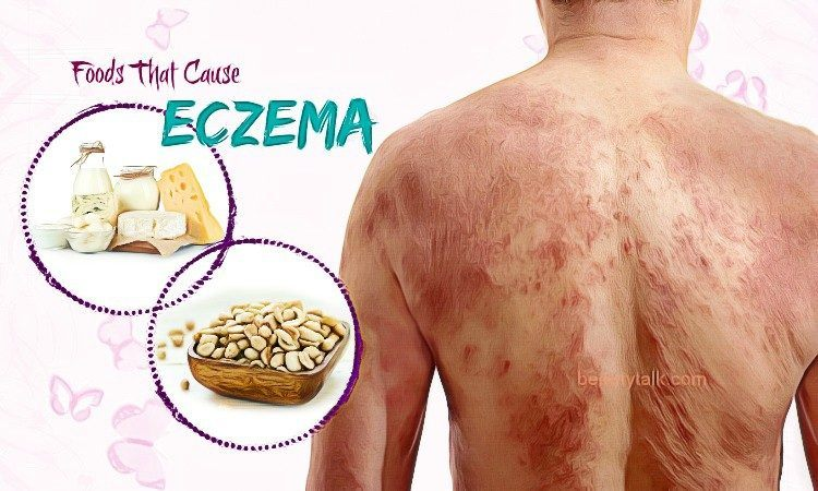foods that cause eczema