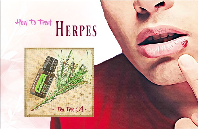 how to treat herpes