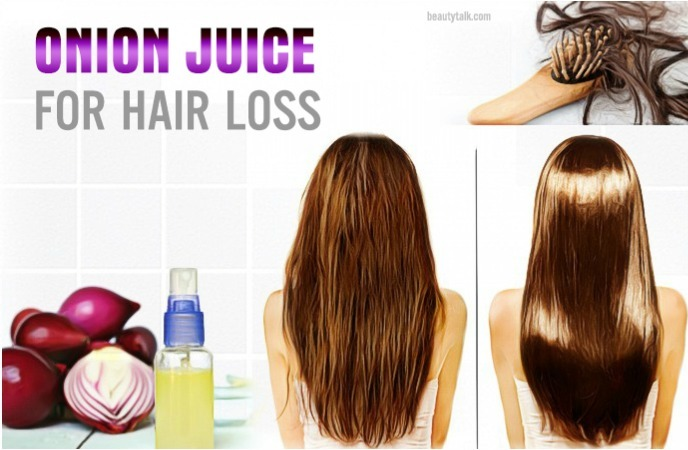 onion juice for hair loss treatment- onion juice for hair loss