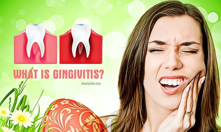 what is gingivitis