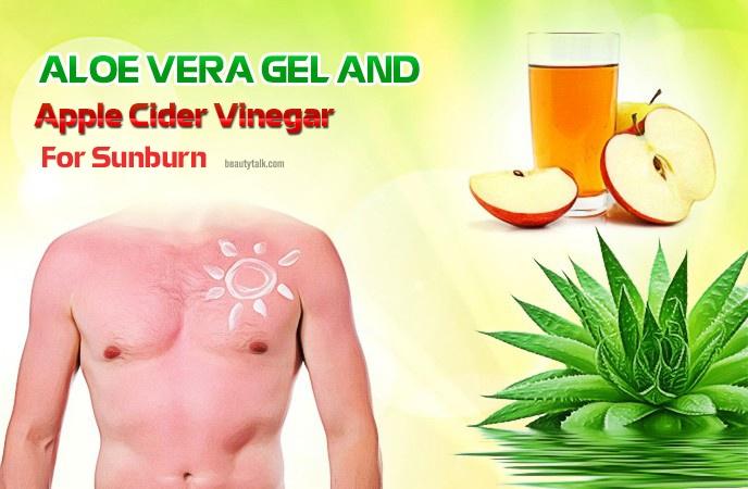apple cider vinegar for sunburn - aloe vera gel and apple cider vinegar for sunburn