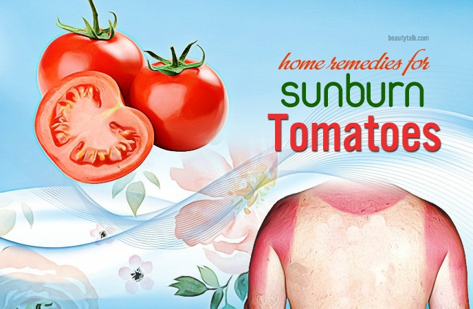 home remedies for sunburn - tomatoes