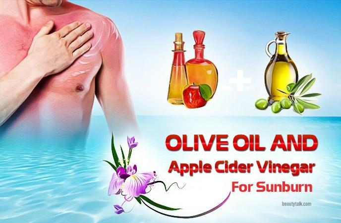apple cider vinegar for sunburn - olive oil and apple cider vinegar for sunburn