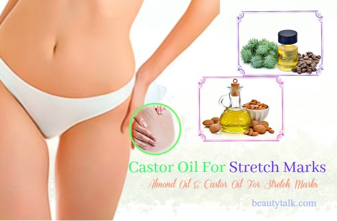 best castor oil for stretch marks - almond oil & castor oil for stretch marks