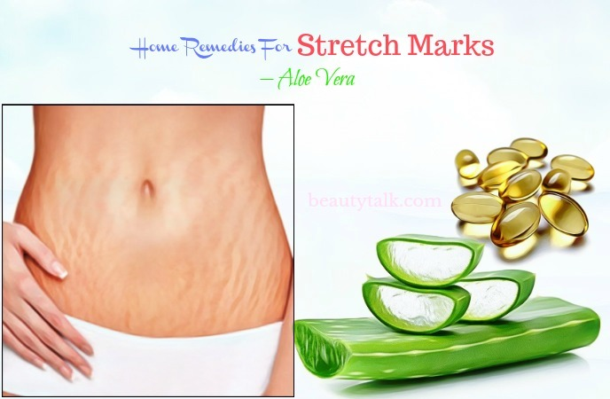 home remedies for stretch marks on breasts - aloe vera