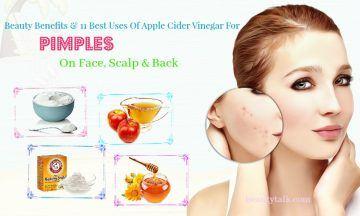 apple cider vinegar for pimples on face