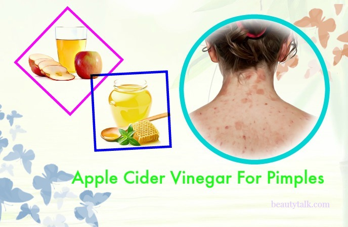 apple cider vinegar for pimples on face - apple cider vinegar & honey