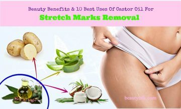 best castor oil for stretch marks