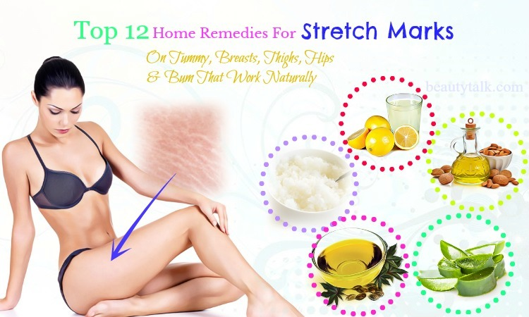 home remedies for stretch marks on breasts