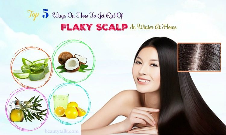 ways on how to get rid of flaky scalp