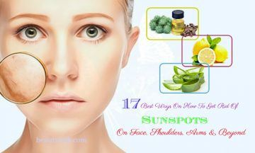 how to get rid of sunspots on face