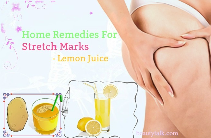 home remedies for stretch marks on bum - lemon juice