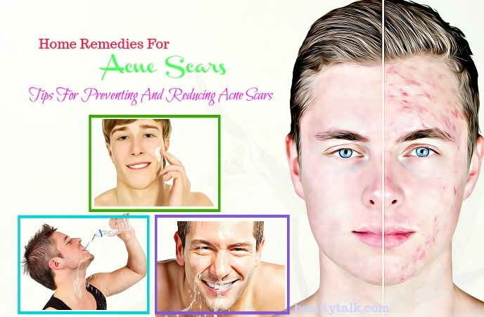 home remedies for acne scars on cheeks - useful tips for faster result