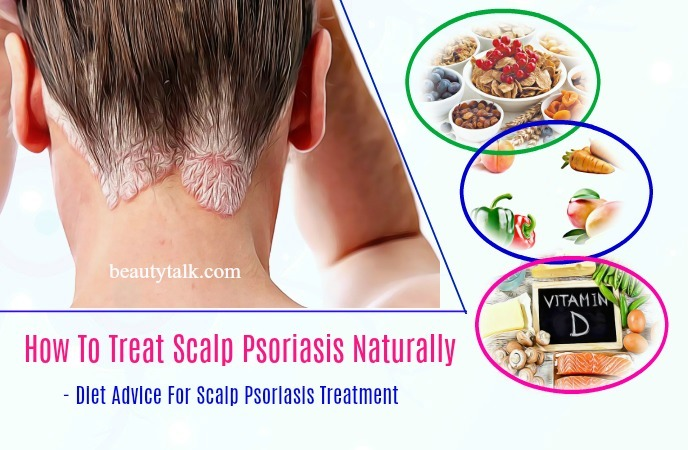how to treat scalp psoriasis - diet advice for scalp psoriasis treatment