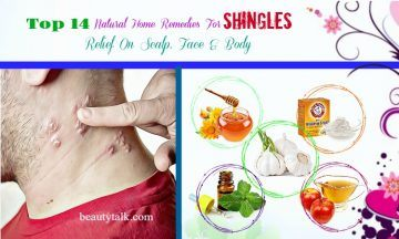 home remedies for shingles on scalp