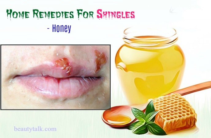 home remedies for shingles relief - honey