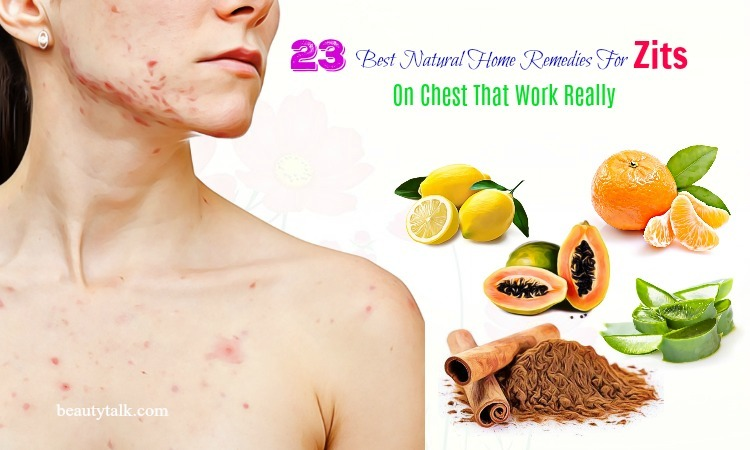 home remedies for zits on chest