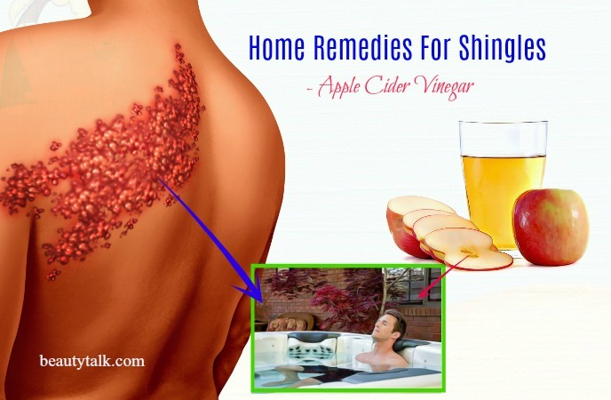 home remedies for shingles on body - apple cider vinegar