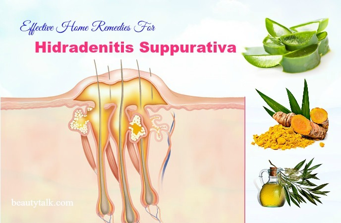 home remedies for hidradenitis suppurativa