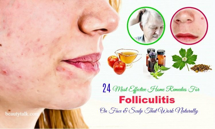 home remedies for folliculitis on face