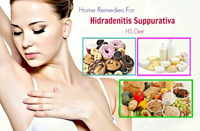 home remedies for hidradenitis suppurativa - hidradenitis suppurativa diet