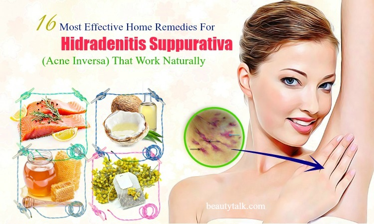 effective home remedies for hidradenitis suppurativa