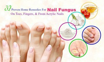 home remedies for nail fungus from acrylic nails