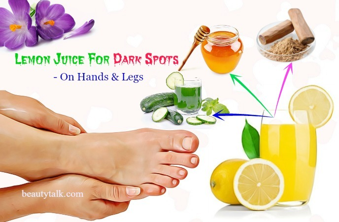 dark spots on hands & legs