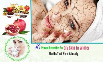 dry skin in winter remedies