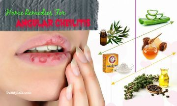 natural home remedies for angular cheilitis