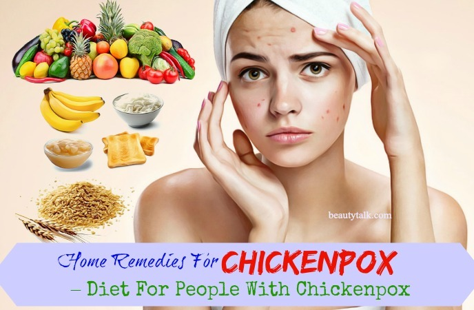 16 Proven Home Remedies For Chickenpox In Children Adults