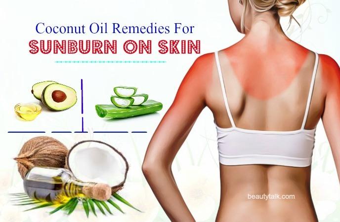 sunburn on skin