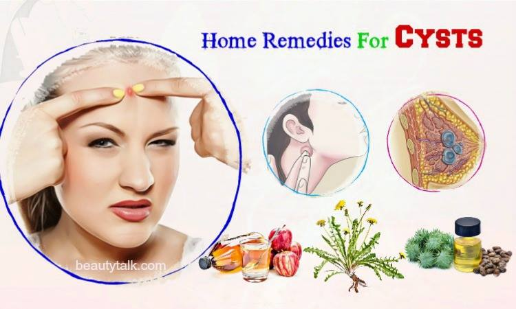 home remedies for cysts