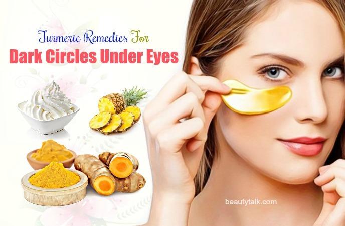 for dark circles under eyes